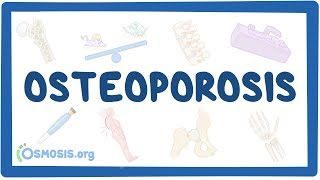 Osteoporosis - causes, symptoms, diagnosis, treatment, pathology