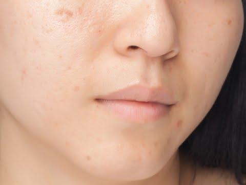 Pastillas para eliminar manchas en la cara