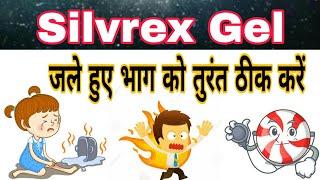 Burn Heal Cream Uses In Hindi Video in MP4,HD MP4,FULL HD