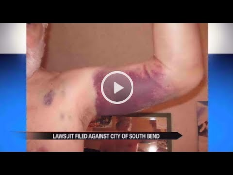 Lawsuit claims South Bend, IN police officers used excessive force