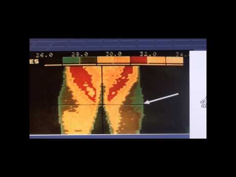 FDA Approved Uses Of Thermography, Part 2