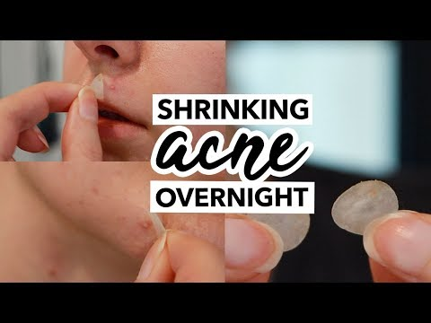 I TRIED GETTING RID OF PIMPLES OVERNIGHT (HYDROCOLLOID PATCHES) | QUEENSHIRIN