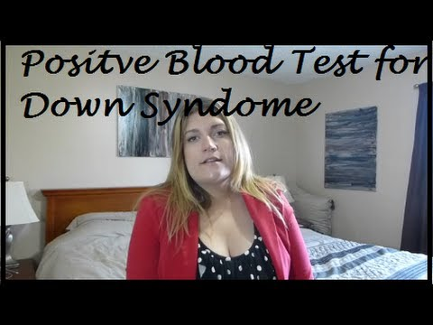 Positive Blood Test For Down Syndrome Youtube