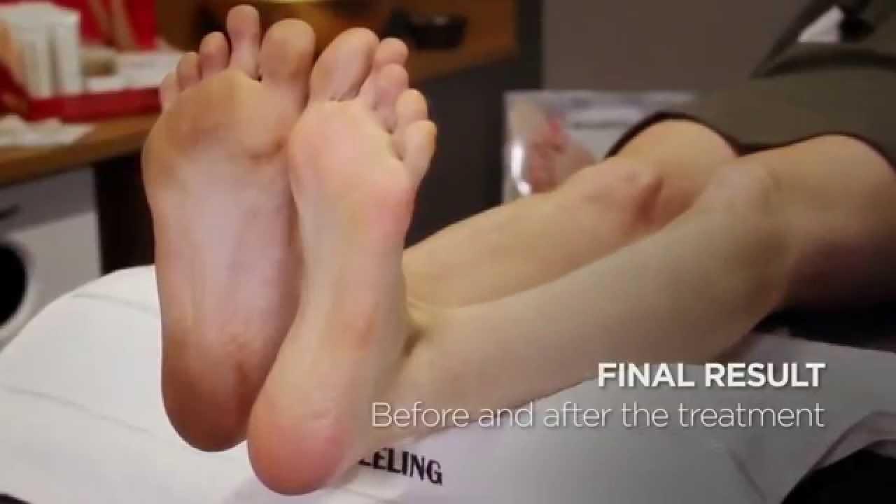 Hornhaut An Den Füßen Entfernen