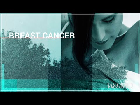 The Basics: Breast Cancer | WebMD