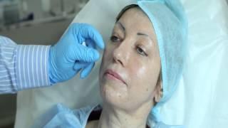 видео Уколы гиалуроновой кислоты: виды, цели и особенности процедуры, противопоказания