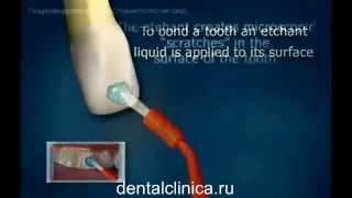 Лечение зубов hi-tech красивая улыбка виниры коронки протезирование имплантация приятные цены(, 2014-03-25T19:58:18.000Z)