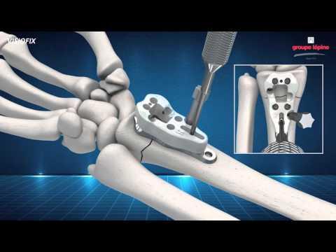Distal Radius Plate VISIOFIX Concept & Surgical Technique 3D Animation