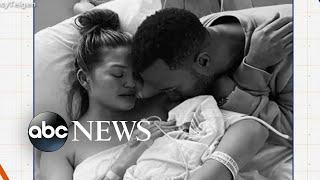 Chrissy Teigen's heartbreaking loss prompts conversations on pregnancy complications