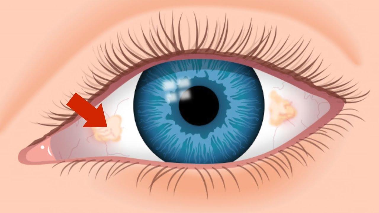 Ugly Yellow Spots Tampa Fl Eye Doctor 813 632 2020 Youtube