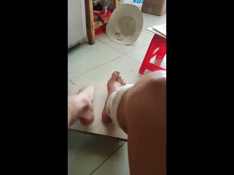 Động tác Tập thể dục để khôi phục sau khi mổ gãy xương chân