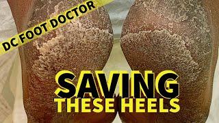 Saving These Heels