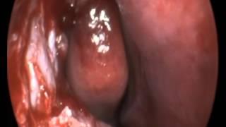 Endoscopic DCR Rt
