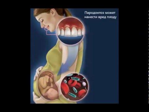 стоматология при беременности