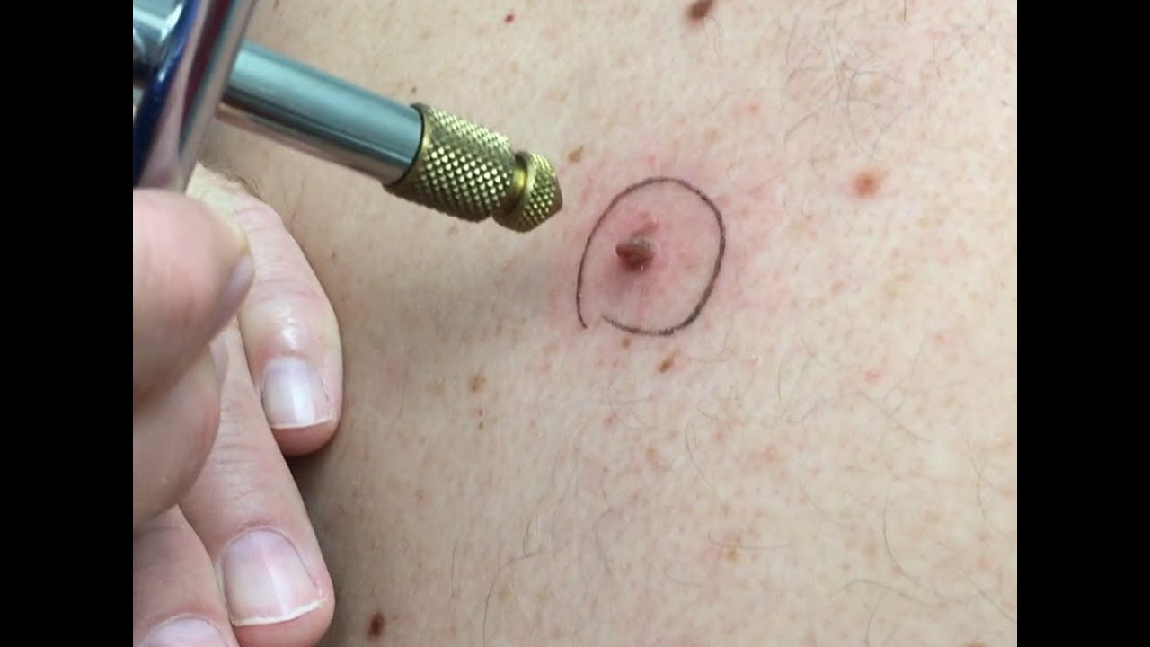 Skin Tags Identifying Treating And Aftercare Your Skin Online