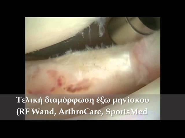Αρθροσκόπηση γόνατος - Ρήξη έξω μηνίσκου - Μηνισκεκτομή - Δρ. Ν. Ροϊδης