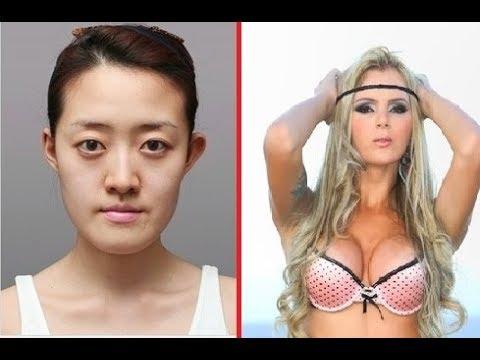As cirurgias plásticas mais impressionantes