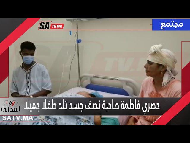 حصري. من قلب المستشفى مع فاطمة صاحبة النصف جسد لحظة ولادتها وهاهو الاسم اللي اختارت لرضيعها - Satv ساتيفي