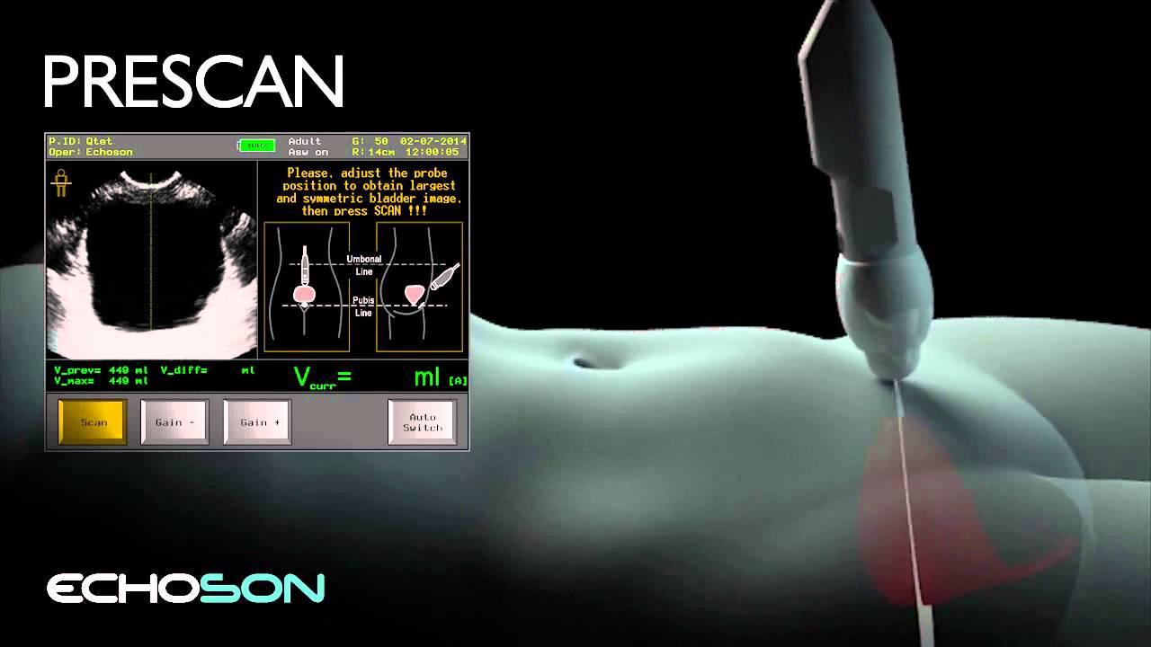 bladder scan volume