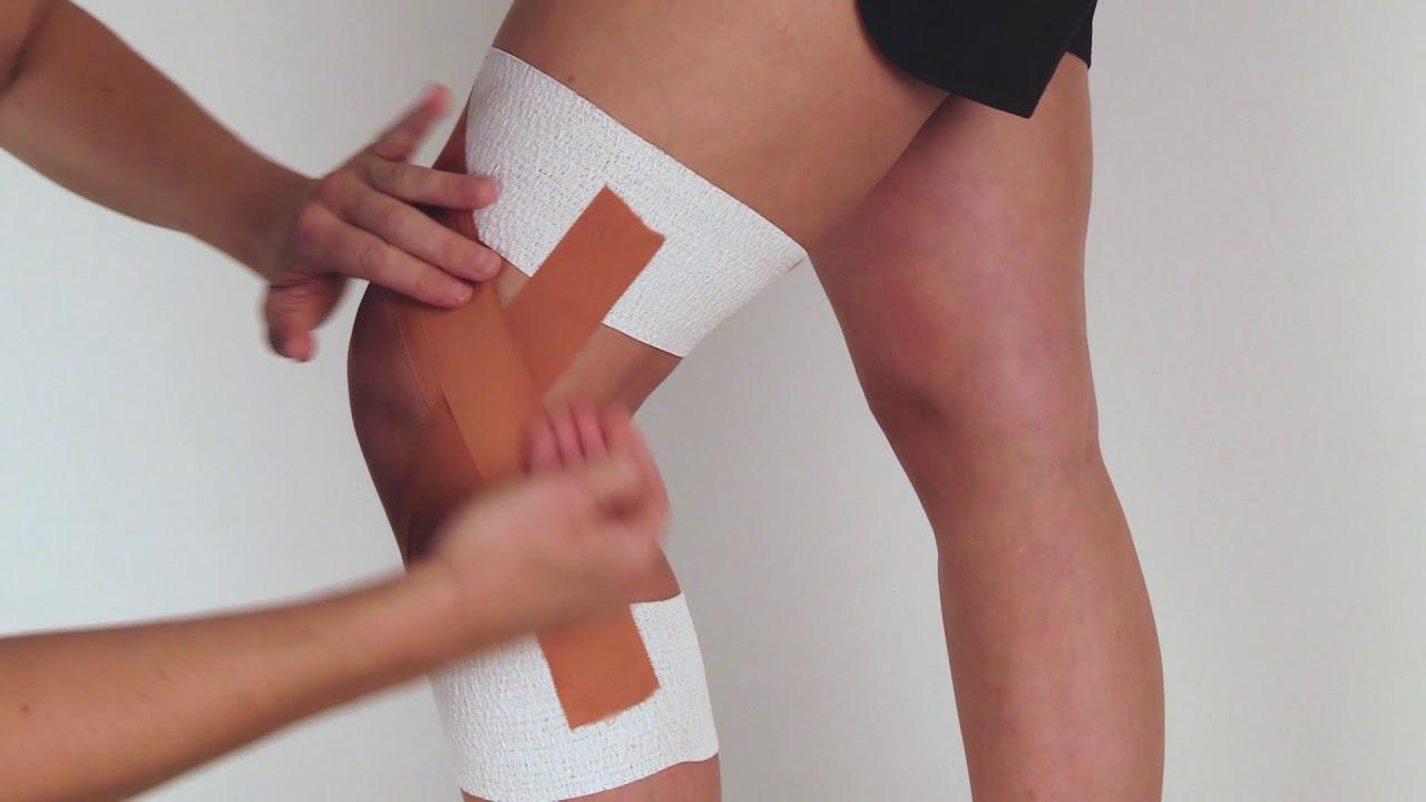 inre blödning i knät