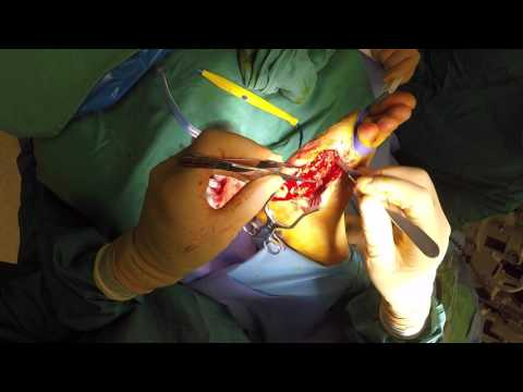 Diabetic Foot Infection/Limb Salvage
