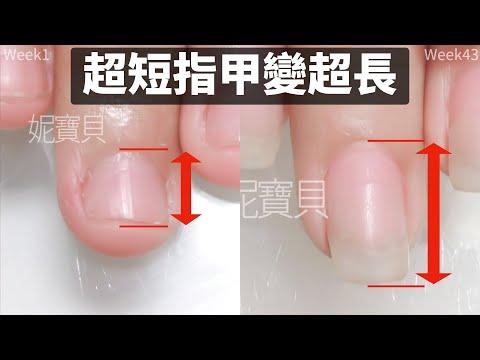 超短指甲變超長|宜蘭高中生|摳咬指甲 甲床外露 甲床內陷 指肉外露