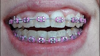 *** Stały aparat ortodontyczny - moja historia ***