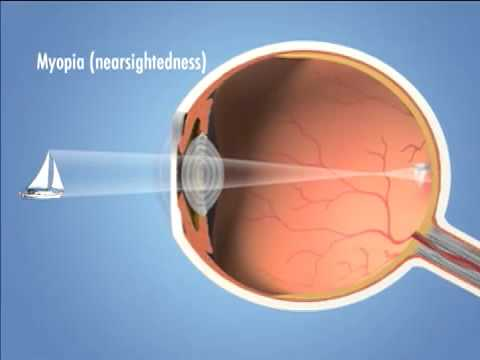 Four Main Types of Refractive Error (vision problems) - Eye Associates