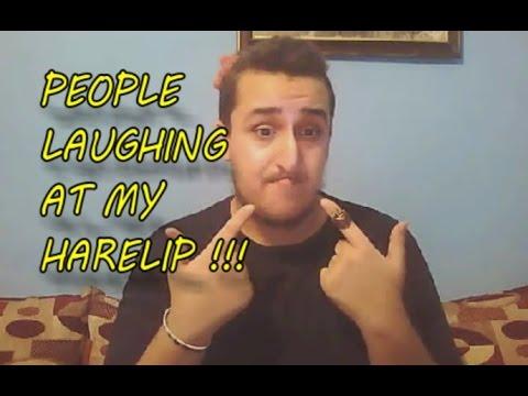 Hairlip joke