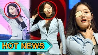 Momoland's Yeonwoo Wore An Eye Patch During a Live Performance, What Happened?