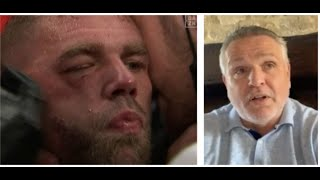 'I WOULD HAVE DONE THE SAME THING' - PETER FURY HONEST ON SAUNDERS BEING PULLED OUT & LOSS TO CANELO