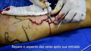 Pernas das melbourne remoção fl de veias