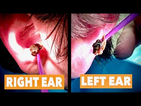 MASSIVE Double Ear Wax Removal! (YIKES!) | Dr. Paul