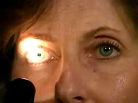 3 Pupillary Light Reflex