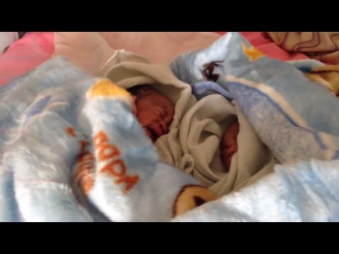 Twin girls born via c-section at the Warrap State Hospital in Kuajok, South Sudan | World Vision