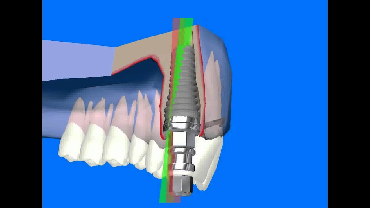 ITI implant system 12mm - YouTube