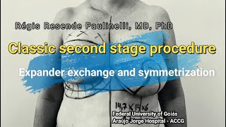 Second stage   expander exchange 2021