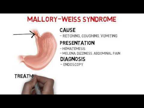 mallory weiss syndrome - youtube, Skeleton