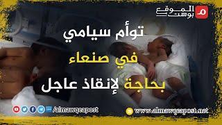 شاهد..توأم سيامي في صنعاء بحاجة لإنقاذ عاجل