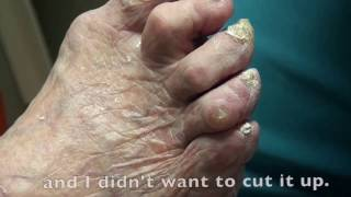 Trimming Really Thick Nails in Podiatry office