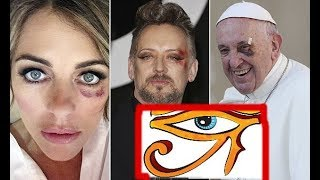 Reptilian Shapeshifters Left Eye Bruising 2019 BLACK EYE OF HORUS demons