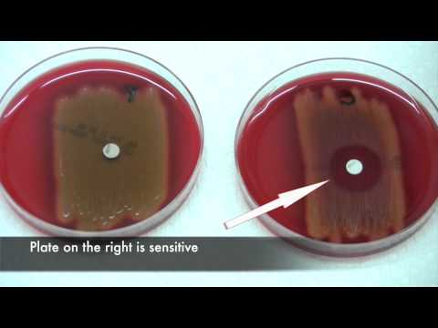 Bacitracin test for Streptococcus pyogenes