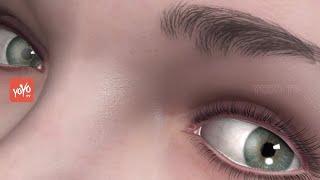 ఇలా చేస్తే మీకు చత్వారం రాదు | Improve Your Eyesight Naturally With Eye Exercises  | YOYO TV Channel