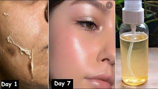 постер к видео Нанесите сыворотку с Витамином С на лицо и получите Сияющую  кожу Без Морщин и Черных точек