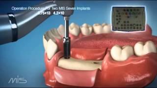 Процедура установки имплантатов MIS Seven(, 2013-01-25T07:48:52.000Z)