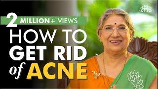 DIY Remedies for acne   Natural Beauty   Dr. Hansaji Yogendra screenshot 5
