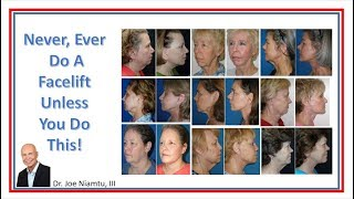 Never do a facelift unless you do this!