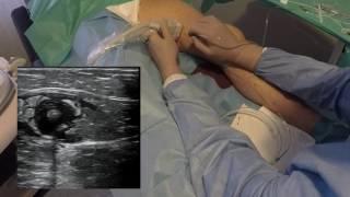 Laserowe leczenie żylaków