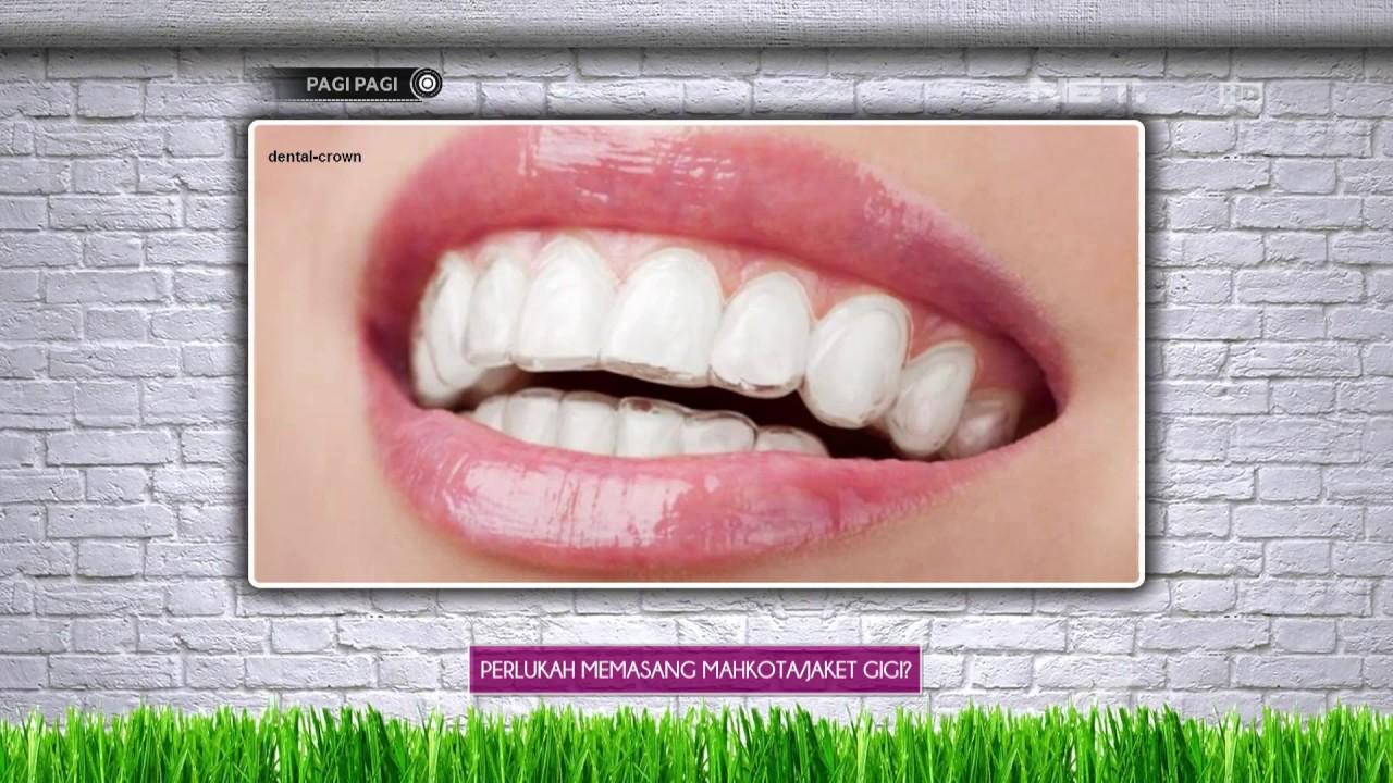 Berikut Ini Manfaat Air Garam Untuk Meredakan Sakit Gigi Youtube