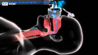 What is Obstructive Sleep Apnea? Presented by Fisher & Paykel